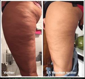 dr juchheim byebycellulite ergebnis beine
