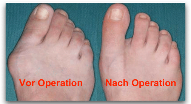Hallux Valgus Operation